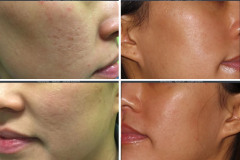 Infini Genius for Skin Tightening and Acne Scarring