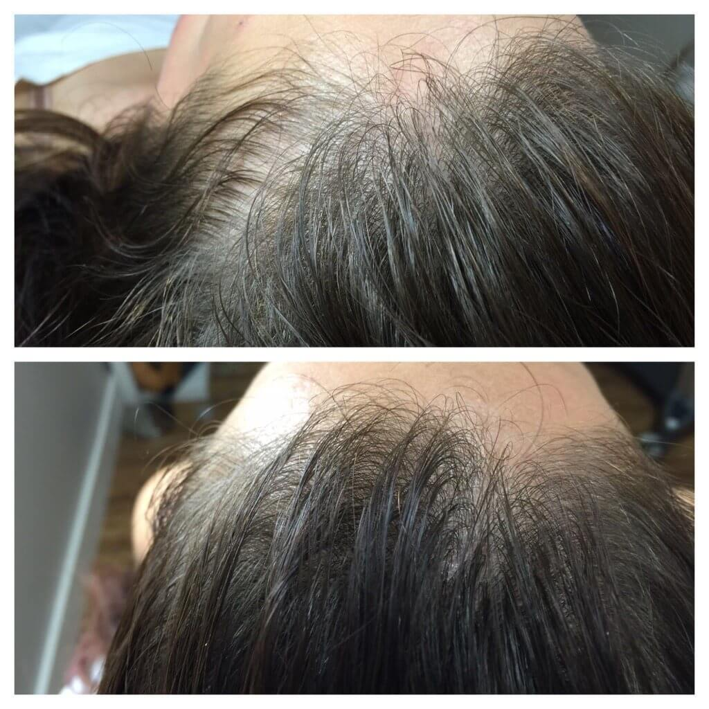 , PRP for Hair Loss