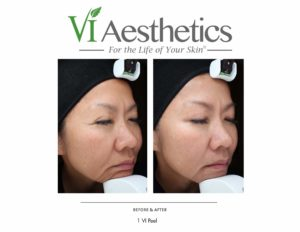 vi-peels-before-after