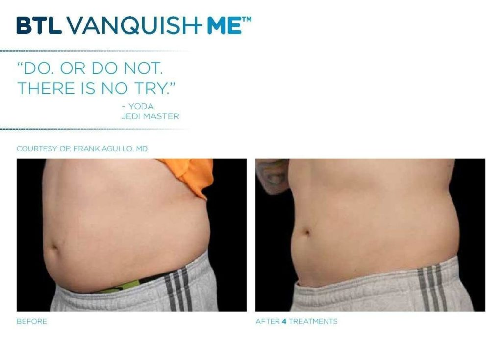vanquish ME™, Vanquish ME  Non-Surgical Fat Reduction