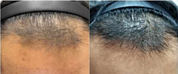 , Keralase: Cutting Edge Non-Surgical Treatment for Hair Loss
