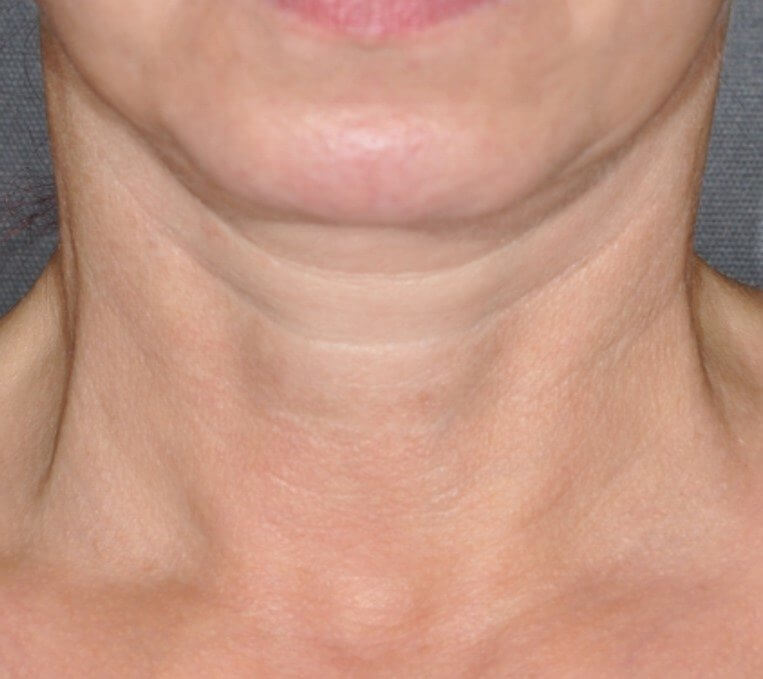 exilis elite, Exilis Ultra Non-Surgical Skin Tightening